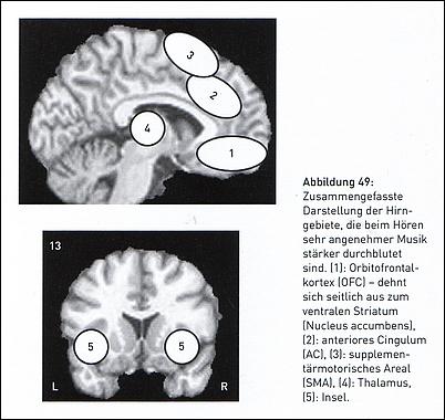 """Stärkere Durchblutung der Hirngebiete beim Hören """"sehr angenehmer Musik"""""""